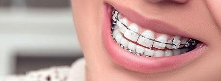 آیا پس از استفاده از بریس باید دندانهای خود را سفید کنم؟