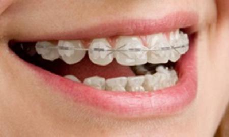 ارتودنسی همرنگ دندان یا سرامیکی