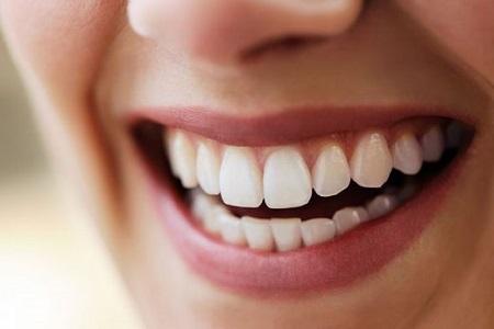 باندینگ دندان میتواند به بستن فاصله بین دندانها کمک کند