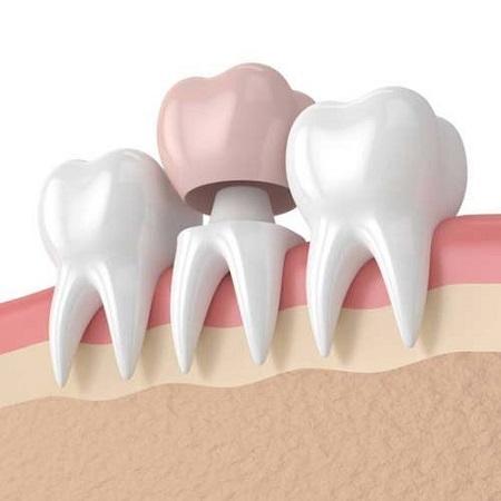 تاجهای دندان