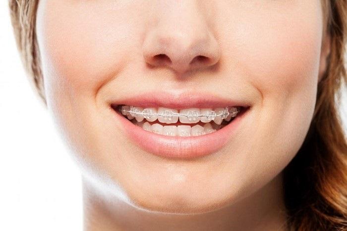 تفاوت ارتودنسی ثابت و متحرک مرتب کردن دندان با انواع ارتودنسی