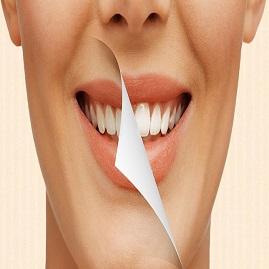 جرمگیری و ارتودنسی دندان