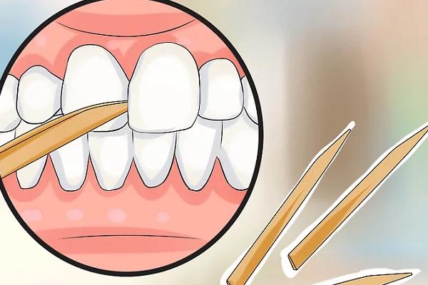 خلال دندان مخصوص برداشتن پلاک