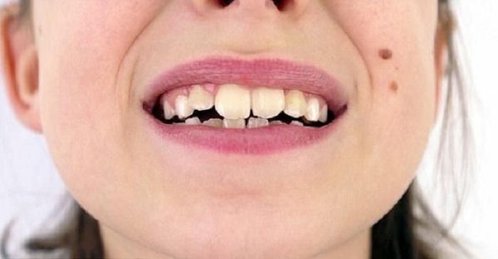 درمان نامرتبی و بی نظمی دندان ها بعلت اختلاف در اندازه فک و دندان