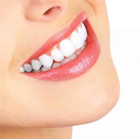دندان های,دهان ودندان,بهداشت دهان و دندان,روش مسواک زدن