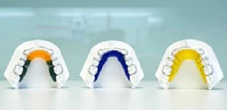ریتینر (نگهدارنده) فضای بین دندانی