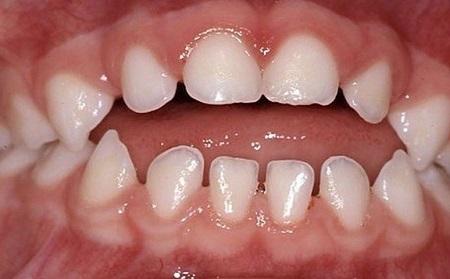 عدم ردیف بودن جانبی دندانها