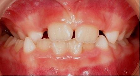 عدم ردیف بودن جانبی دندانها1