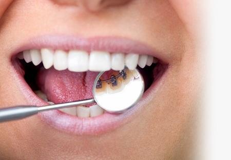 علت برگشت ارتودنسی و حرکت دندانها پس از درمان چیست