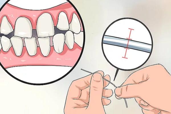 فاصله بین دندانهایتان