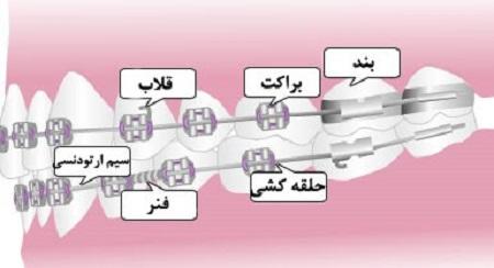 قسمتهای مختلف ارتودنسی