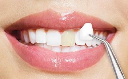 ونیرهای سرامیکی میتوانند به بستن فاصله بین دندانها کمک کنند