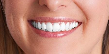 کاشت ایمپلنت یک روش درمانی دیگر برای بستن فاصله بین دندان است