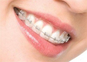32Orthodontic-tooth-colored-brackets2-300x213