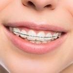 انواع ارتودنسی دندان (بریس) برای رفع مشکلات جزئی و اساسی دندانها