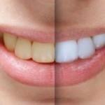 سفید کردن دندان ها (بلیچینگ ) بعد از ارتودنسی