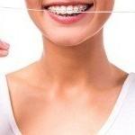 نخ دندان برای دندانهای ارتودنسی شده به همراه آموزش نحوه کشیدن نخ