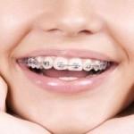 ارتودنسی و سیم کشی:ردیف کردن و درمان ناهنجاری فک، صورت و دندان