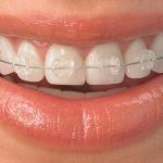 ارتودنسی سرامیکی (همرنگ دندان)
