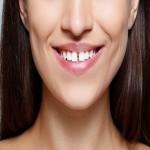 انواع روش های بستن فاصله بین دندان ها (دیاستما) برای لبخندی زیبا