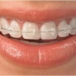 تفاوت ارتودنسی ثابت و متحرک : مرتب کردن دندان با انواع ارتودنسی